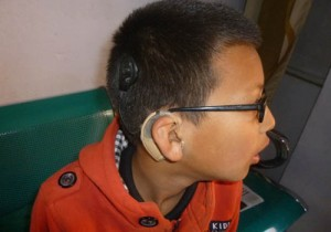 hearingnepal cochlear support
